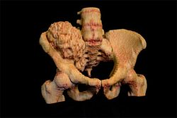 3d-printed model of a pelvis with ossified tumour - created using Bespoke Modeling service from - created using 3D Systems